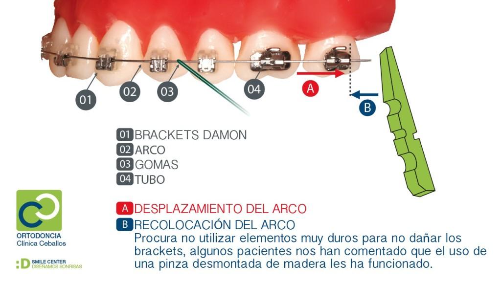 consejos dentales ortodoncia
