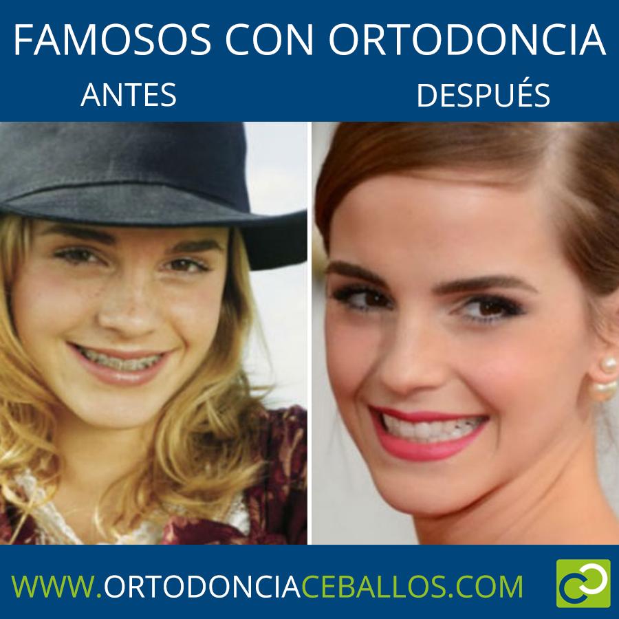 FAMOSOS_CON_ORTODONCIA-ENMAWATSON
