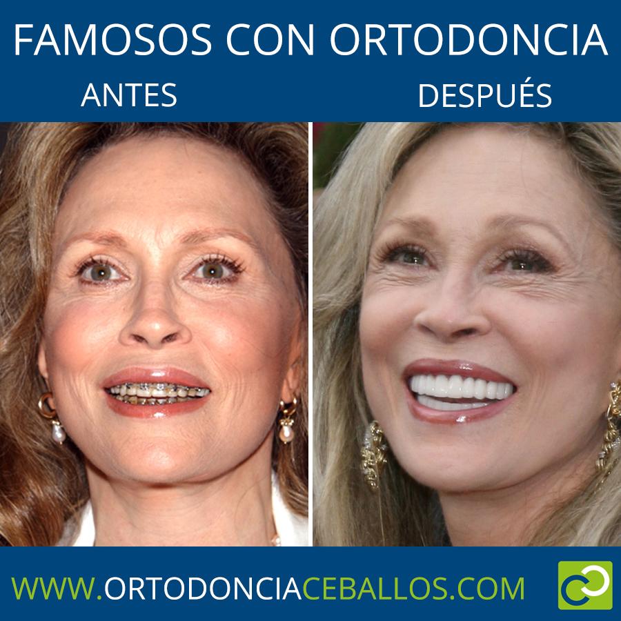 FAMOSOS_CON_ORTODONCIA-FayeDunaway