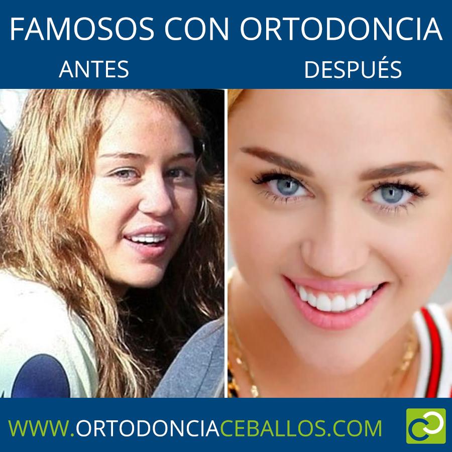 FAMOSOS_CON_ORTODONCIA-MileyCyrus
