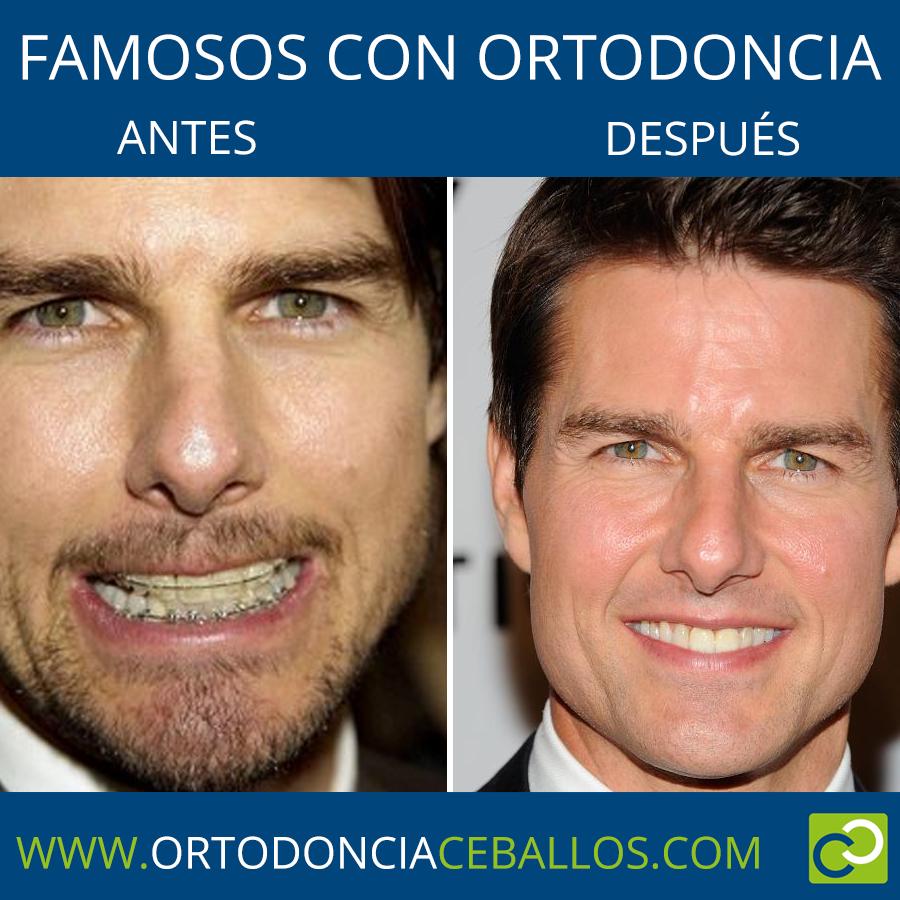 FAMOSOS_CON_ORTODONCIA-TOMCRUISE