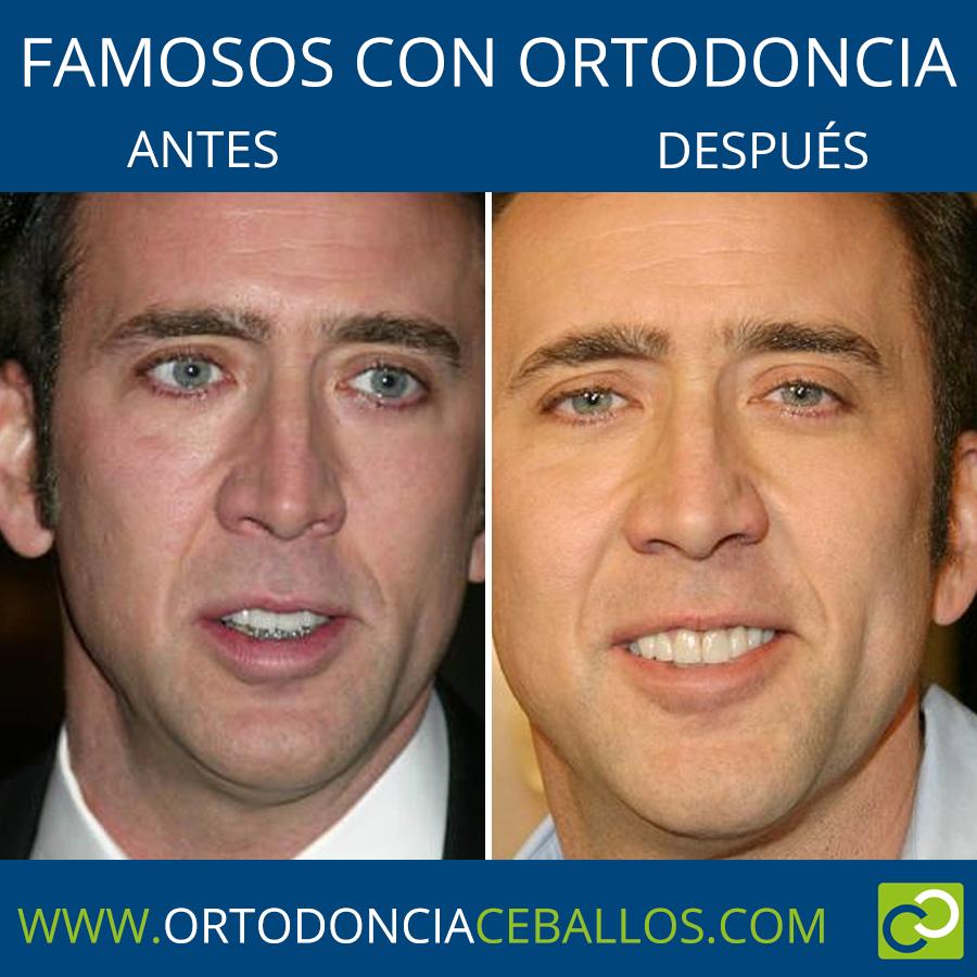 FAMOSOS_CON_ORTODONCIA-nicolascage