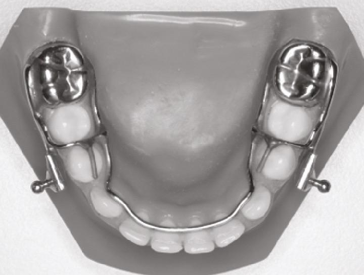 Parte inferior: Coronas y estructura de soporte para la sujeción de las bielas de HERBST®