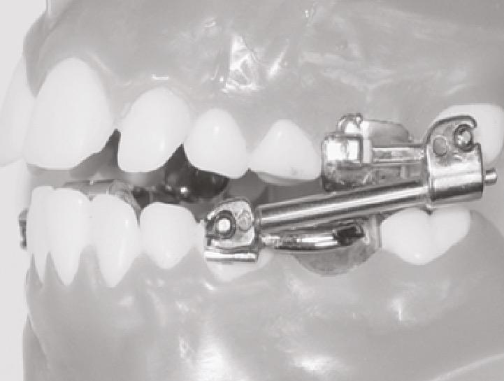 Bielas de HERBST: Son las que mantienen la mandíbula adelantada y con ello generan el crecimiento mandibular.