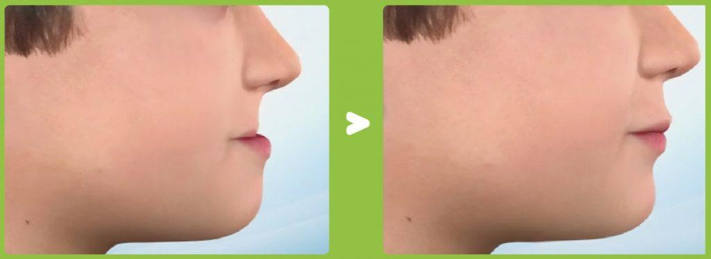 Prognatismo mandibular