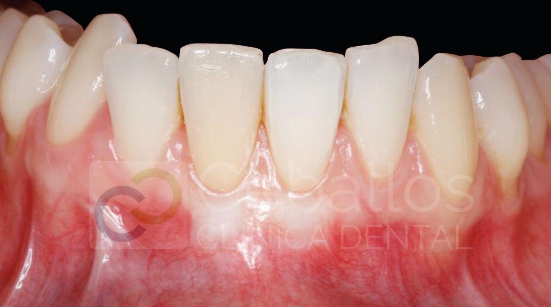 cubrir-raices-diente-clinicadentalceballos-b